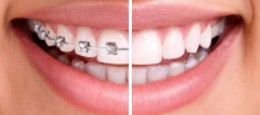 Invisalign® Teeth Straightening